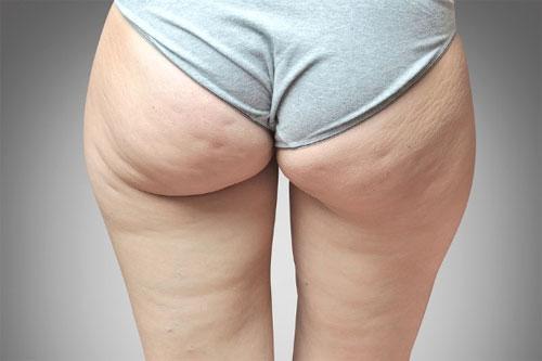 Преимущества и недостатки ультразвукового метода лечения целлюлита