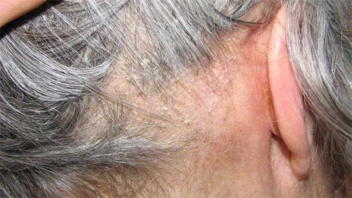 Развитие острого конъюнктивита и себорейного дерматита